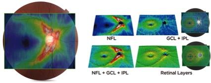 3次元眼底撮影装置:3D OCT-2000(光干渉断層計)